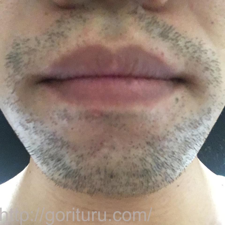 ヒゲ脱毛(医療レーザーの永久脱毛)5回目12日後の効果と変化(鼻下・アゴ)