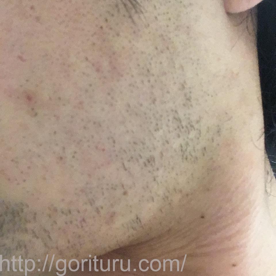 ヒゲ脱毛(医療レーザーの永久脱毛)5回目12日後の効果と変化(左ほほ・もみあげ)