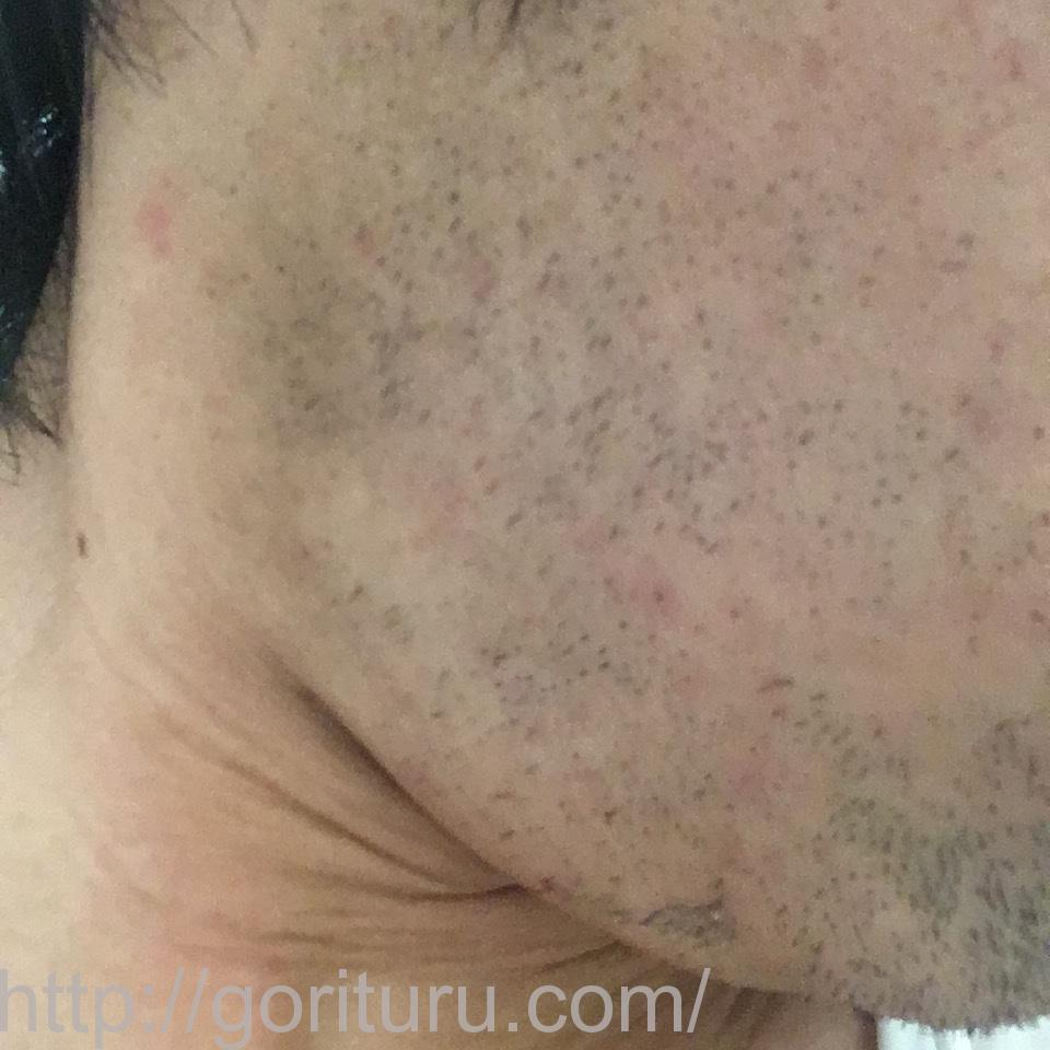 ヒゲ脱毛(医療レーザーの永久脱毛)5回目12日後の効果と変化(右ほほ・もみあげ)