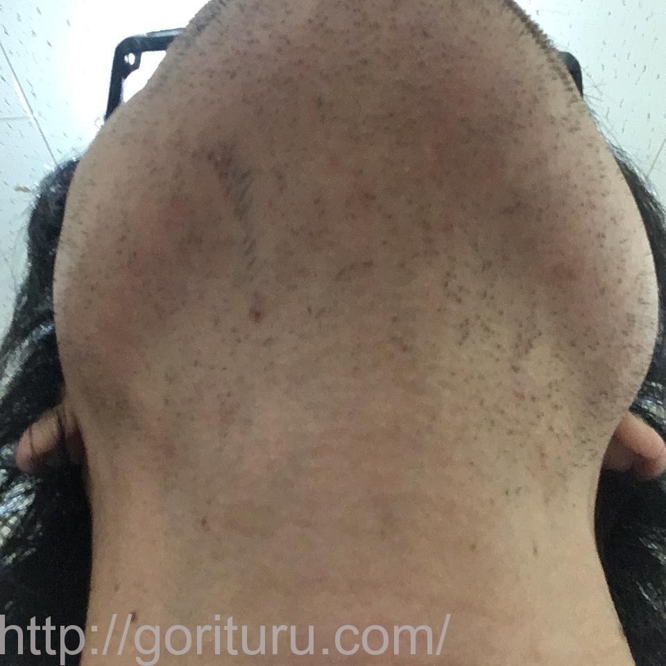 ヒゲ脱毛(医療レーザーの永久脱毛)5回目12日後の効果と変化(鼻下・首)