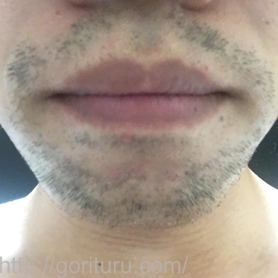 ヒゲ脱毛(医療レーザーの永久脱毛)5回目16日後の効果と変化(鼻下・アゴ)