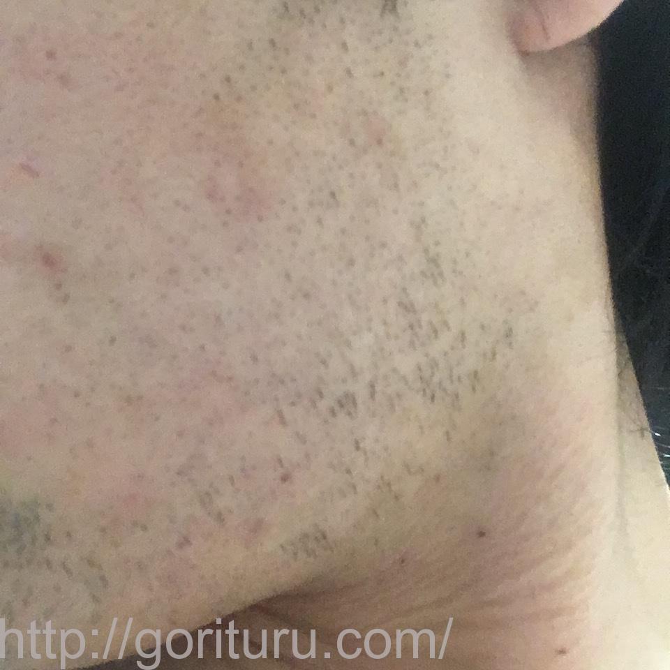 ヒゲ脱毛(医療レーザーの永久脱毛)5回目16日後の効果と変化(左ほほ・もみあげ)