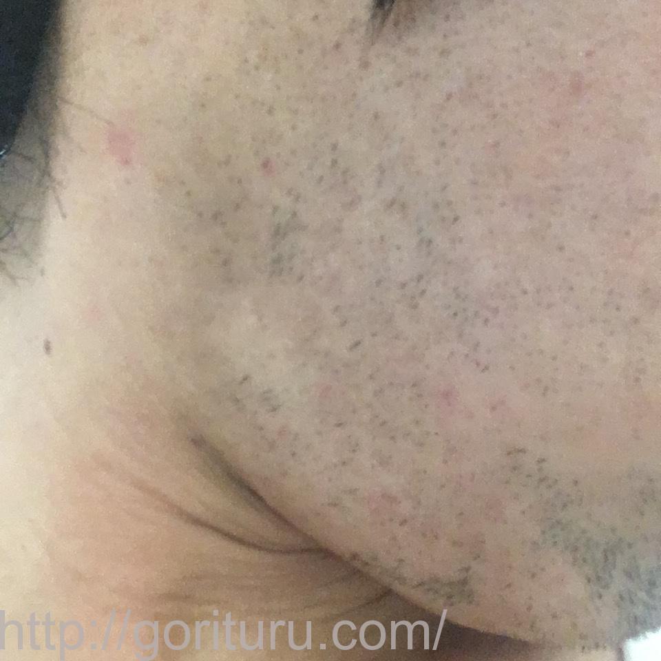 ヒゲ脱毛(医療レーザーの永久脱毛)5回目16日後の効果と変化(右ほほ・もみあげ)