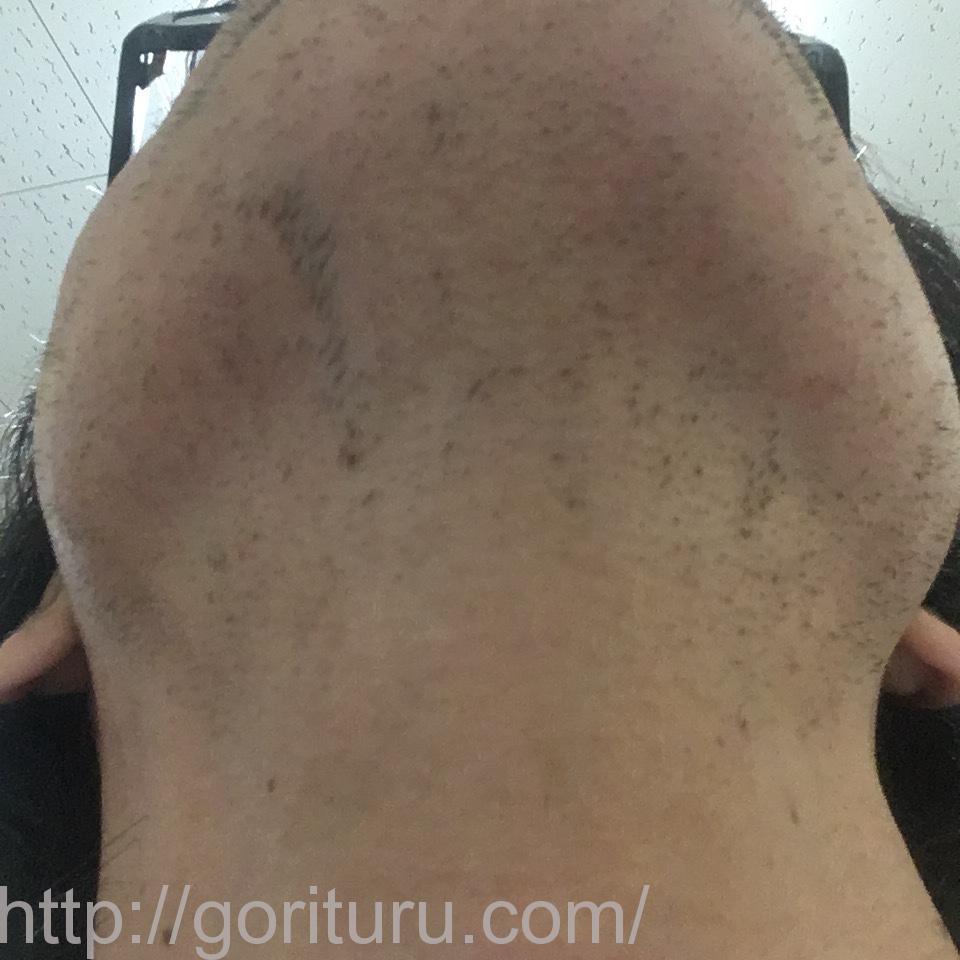 ヒゲ脱毛(医療レーザーの永久脱毛)5回目16日後の効果と変化(首・アゴ下)