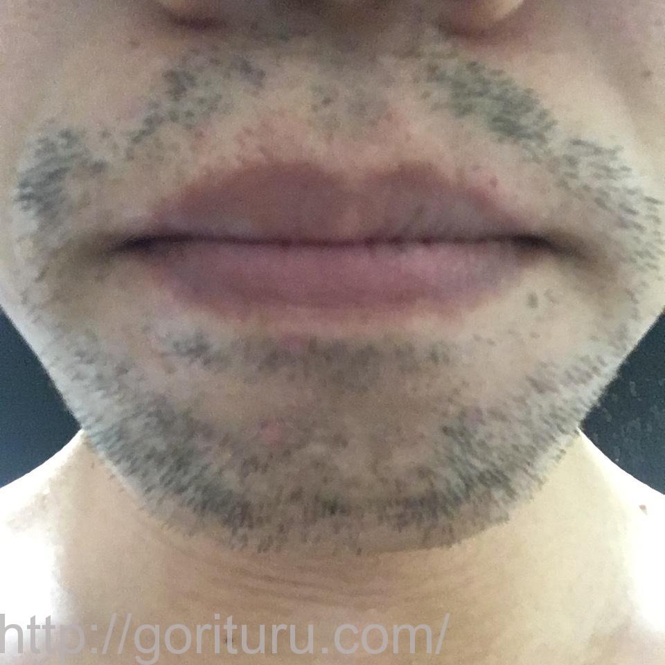 ヒゲ脱毛(医療レーザーの永久脱毛)5回目20日後の効果画像(鼻下・アゴ)