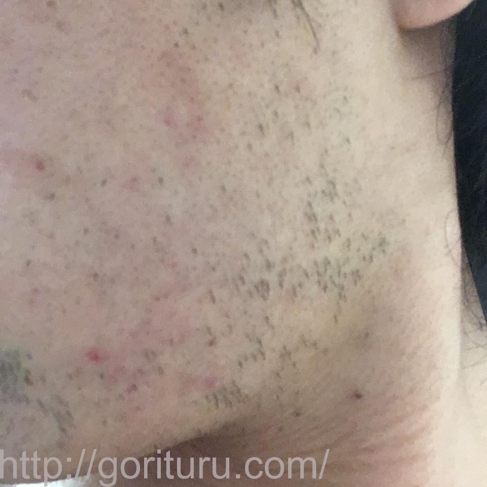ヒゲ脱毛(医療レーザーの永久脱毛)5回目20日後の効果画像(左ほほ・もみあげ)