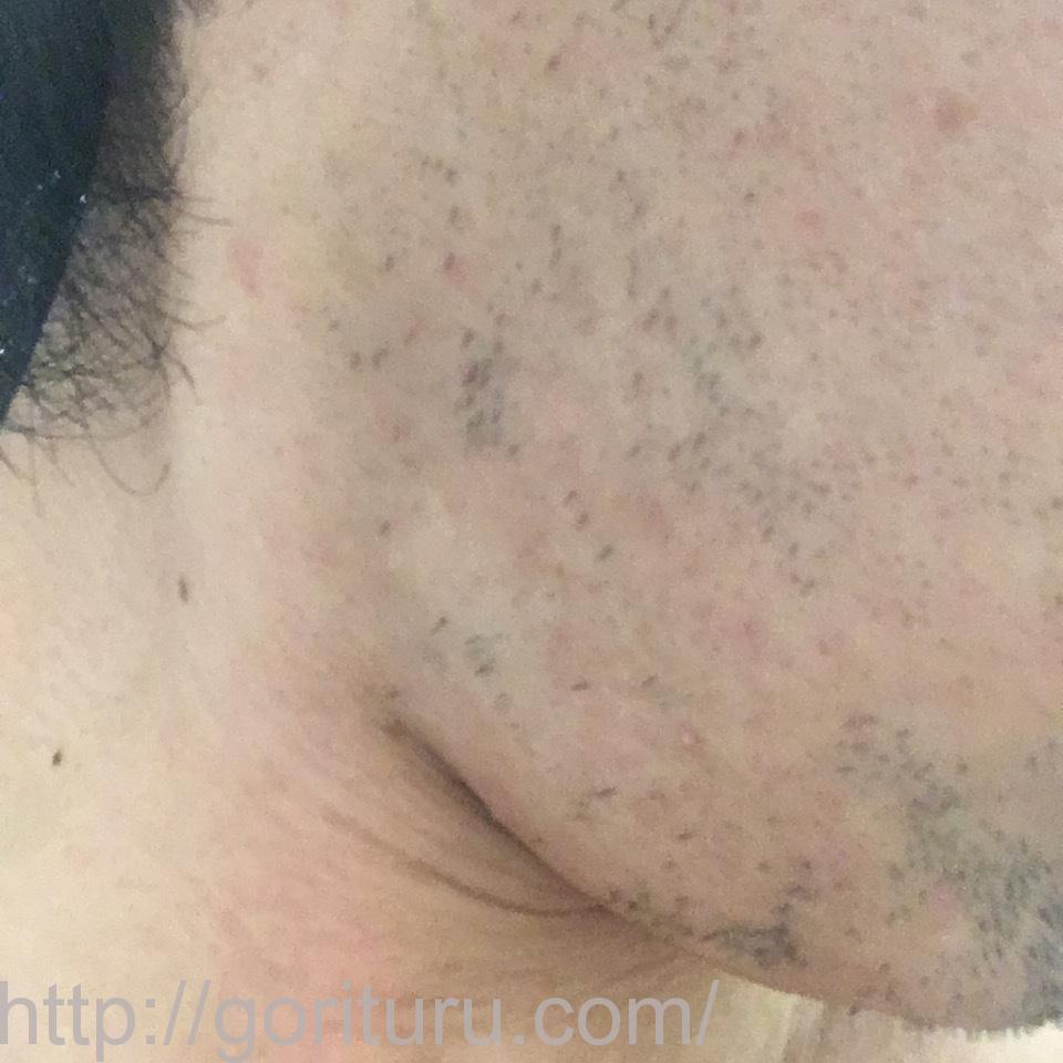 ヒゲ脱毛(医療レーザーの永久脱毛)5回目20日後の効果画像(右ほほ・もみあげ)