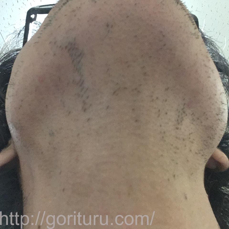 ヒゲ脱毛(医療レーザーの永久脱毛)5回目20日後の効果画像(鼻下・首)