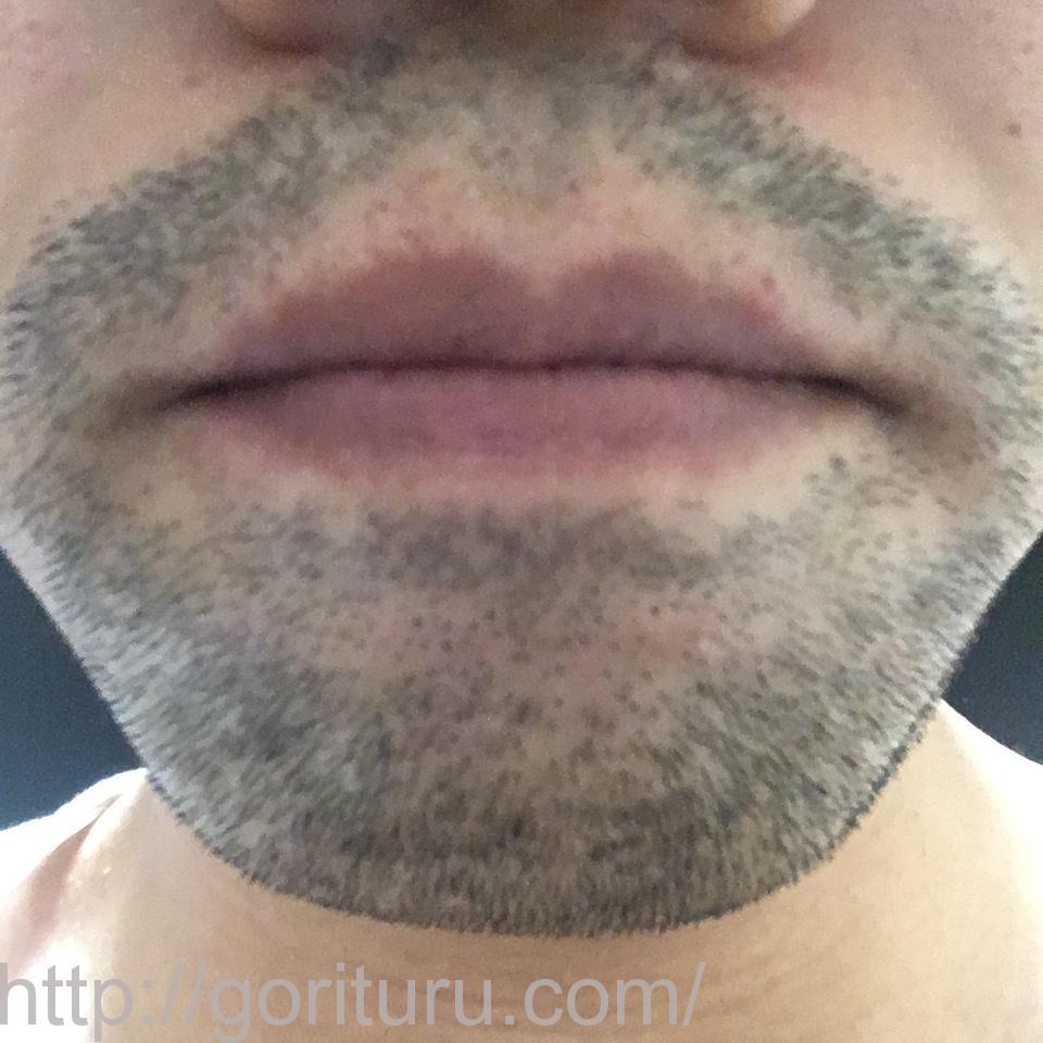 ヒゲ脱毛(永久脱毛)5回目4日後の効果と変化(鼻下・アゴ)
