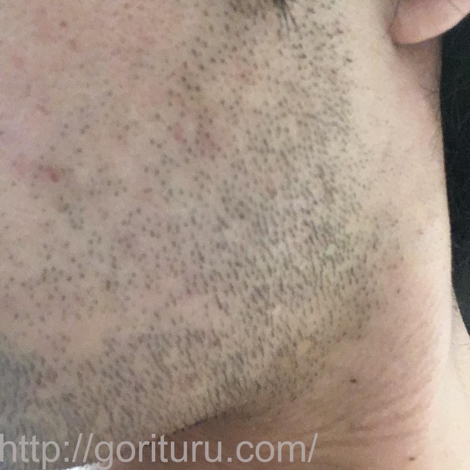 ヒゲ脱毛(永久脱毛)5回目4日後の効果と変化(左ほほ・もみあげ)