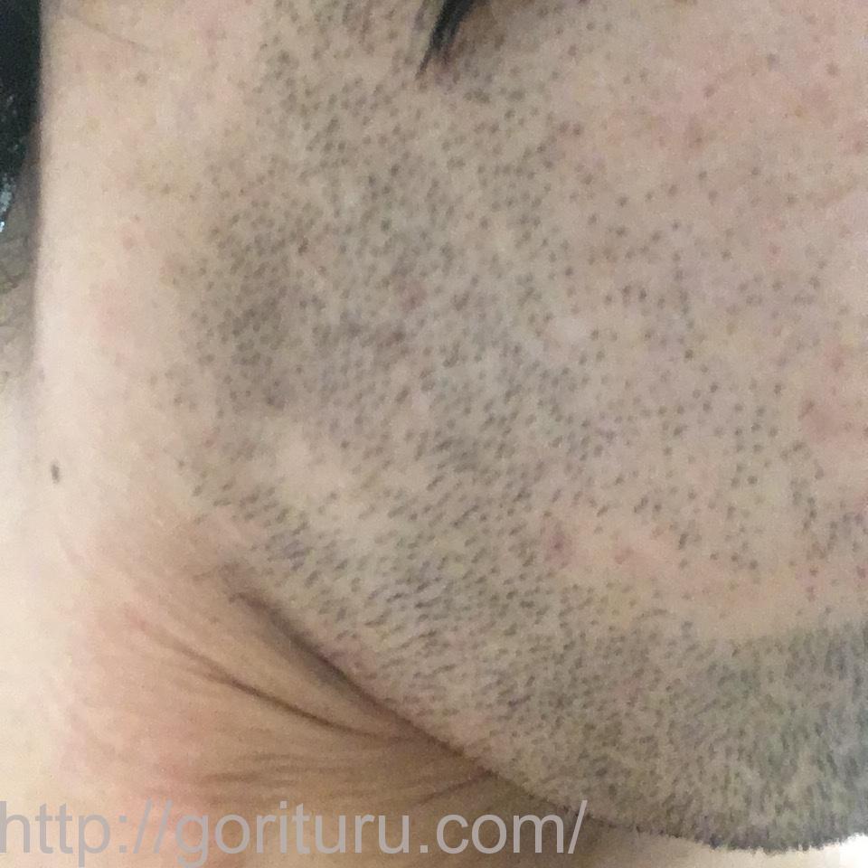 ヒゲ脱毛(永久脱毛)5回目4日後の効果と変化(右ほほ・もみあげ)