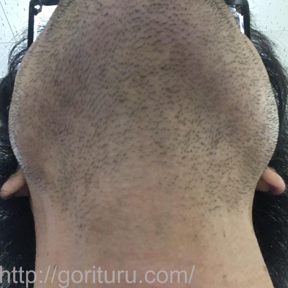 ヒゲ脱毛(永久脱毛)5回目4日後の効果と変化(首・アゴ下)