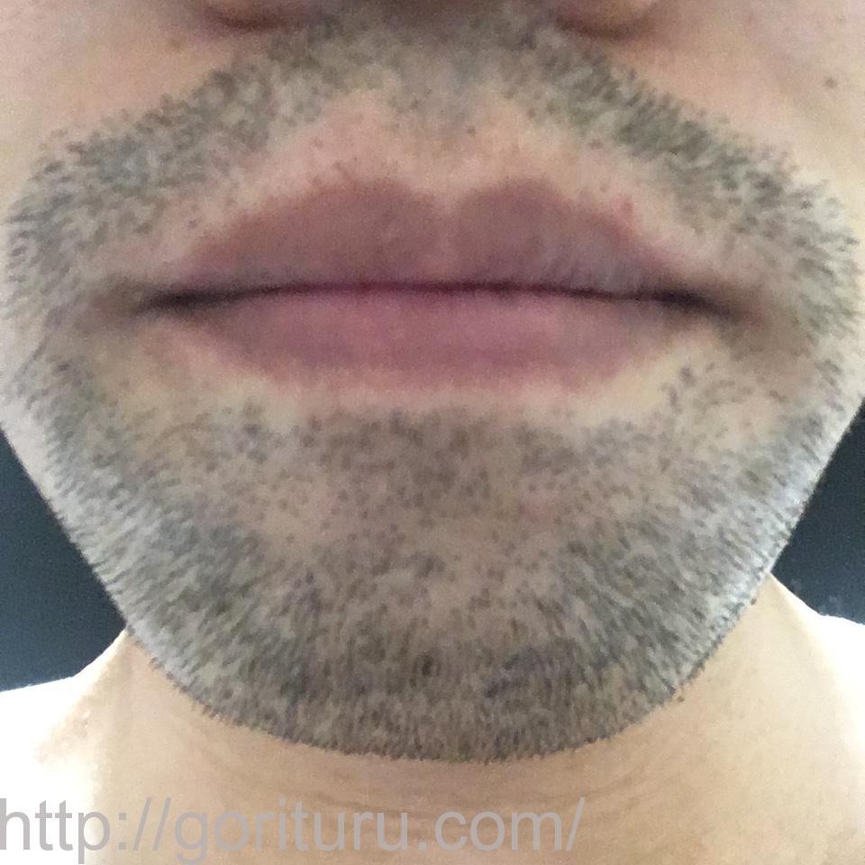 ヒゲ脱毛(永久脱毛)5回目8日後の効果と変化(鼻下・アゴ)