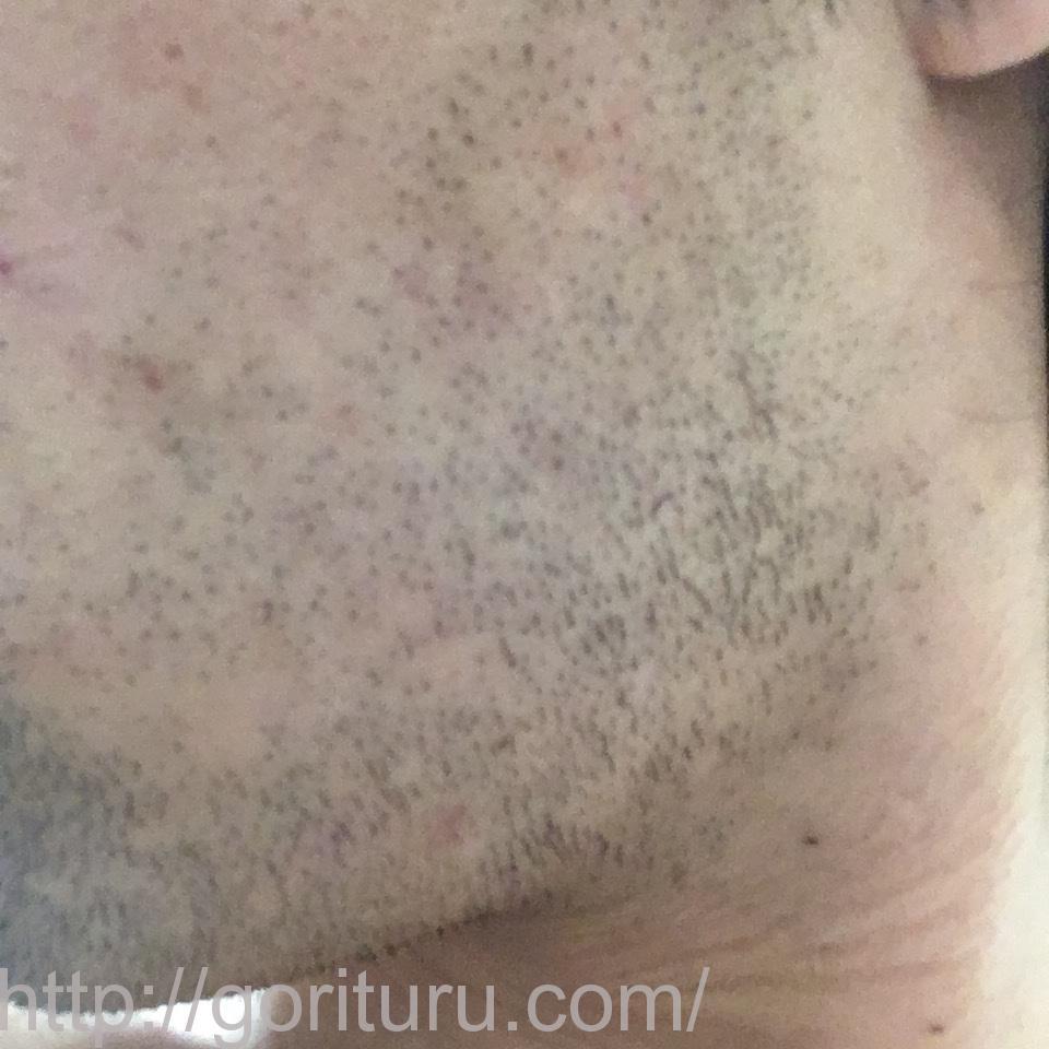 ヒゲ脱毛(永久脱毛)5回目8日後の効果と変化(左ほほ・もみあげ)