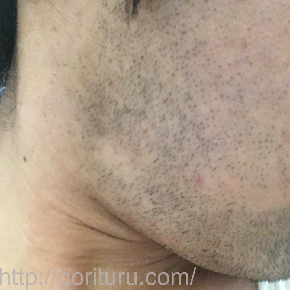 ヒゲ脱毛(永久脱毛)5回目8日後の効果と変化(右ほほ・もみあげ)