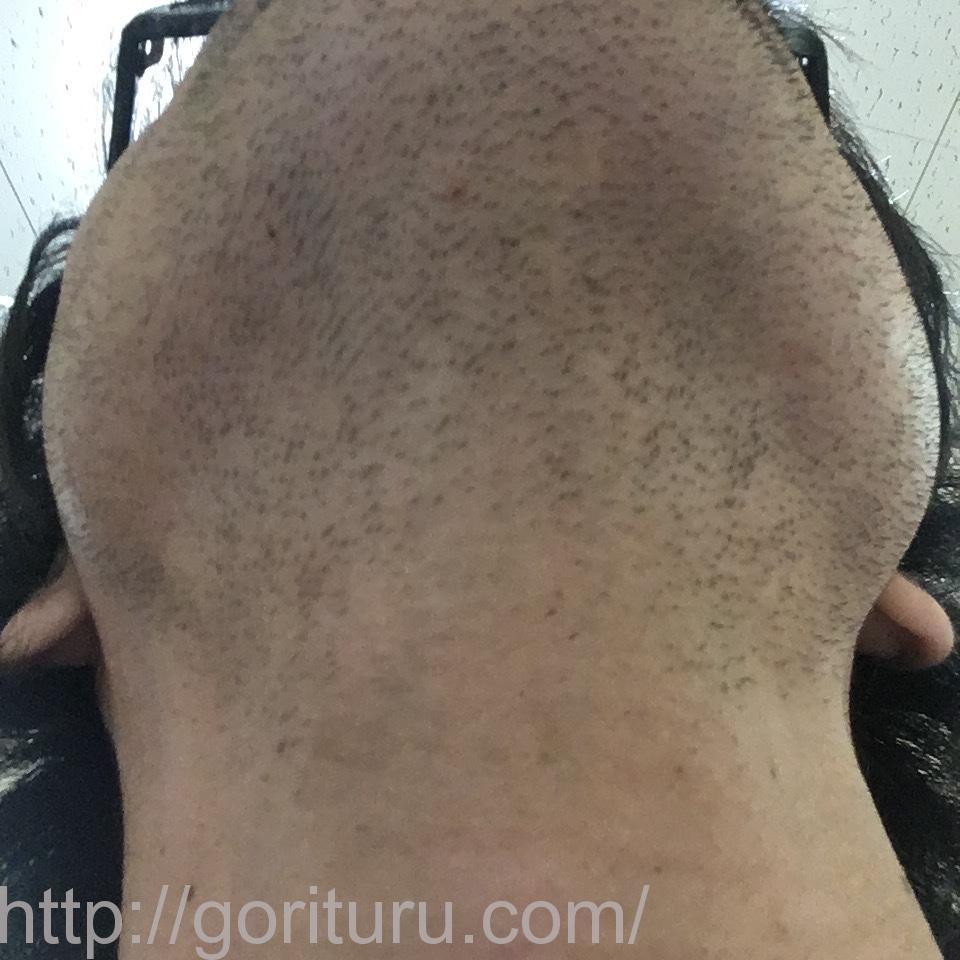 ヒゲ脱毛(永久脱毛)5回目8日後の効果と変化(首・アゴ下)