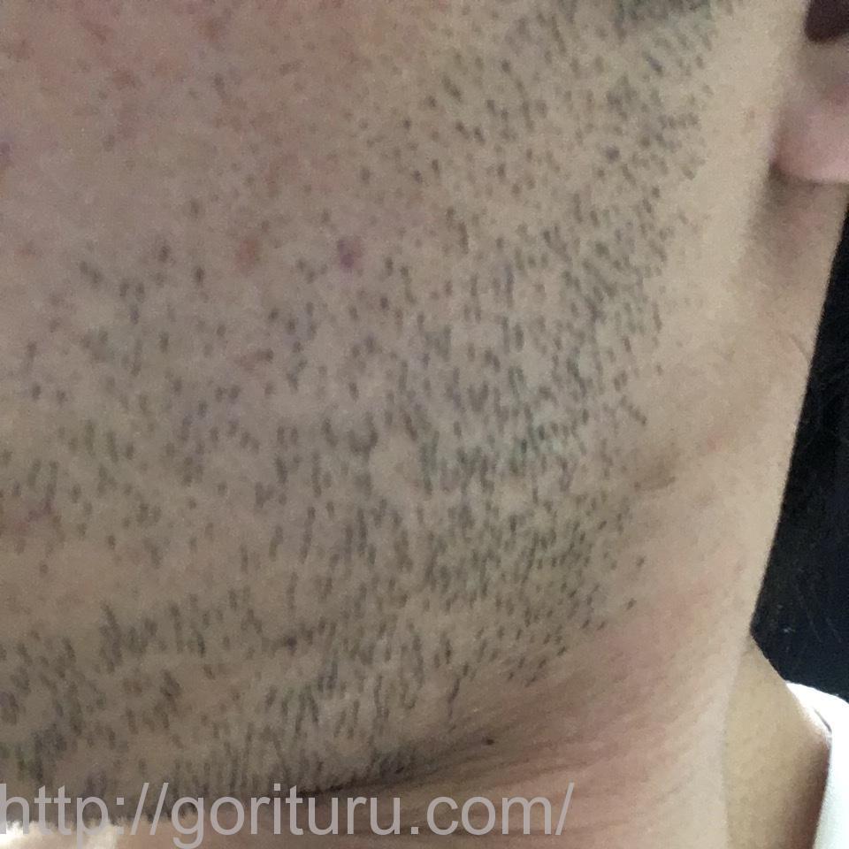 ヒゲ脱毛(医療レーザーの永久脱毛)1回目の効果(左ほほ・もみあげ)