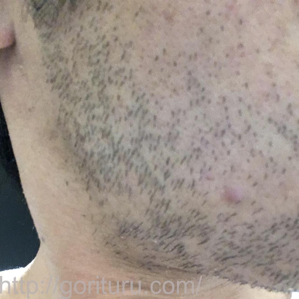 ヒゲ脱毛(医療レーザーの永久脱毛)1回目の効果(右ほほ・もみあげ)