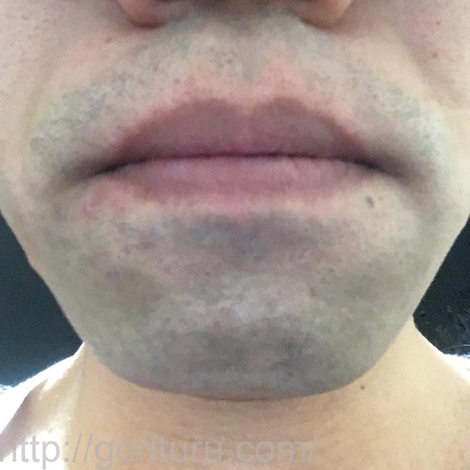 ゴリラクリニックで髭脱毛を受ける前の青ヒゲ