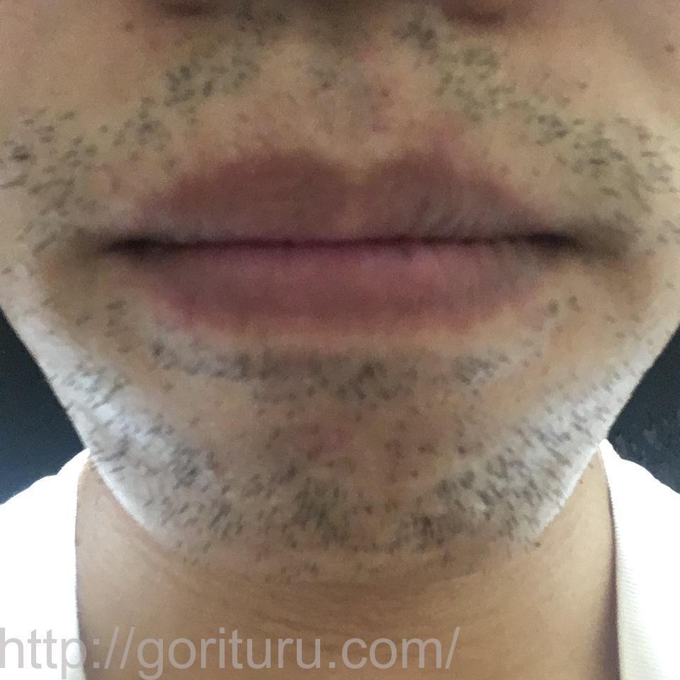 ゴリラクリニックで髭脱毛6回目を終えた後の効果(鼻下・アゴ周りの髭)