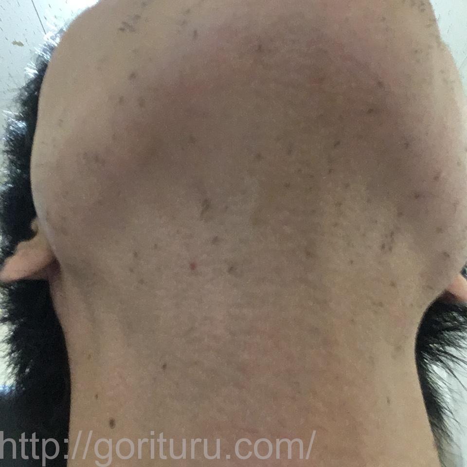髭脱毛6回目の効果【首・アゴ下の髭】