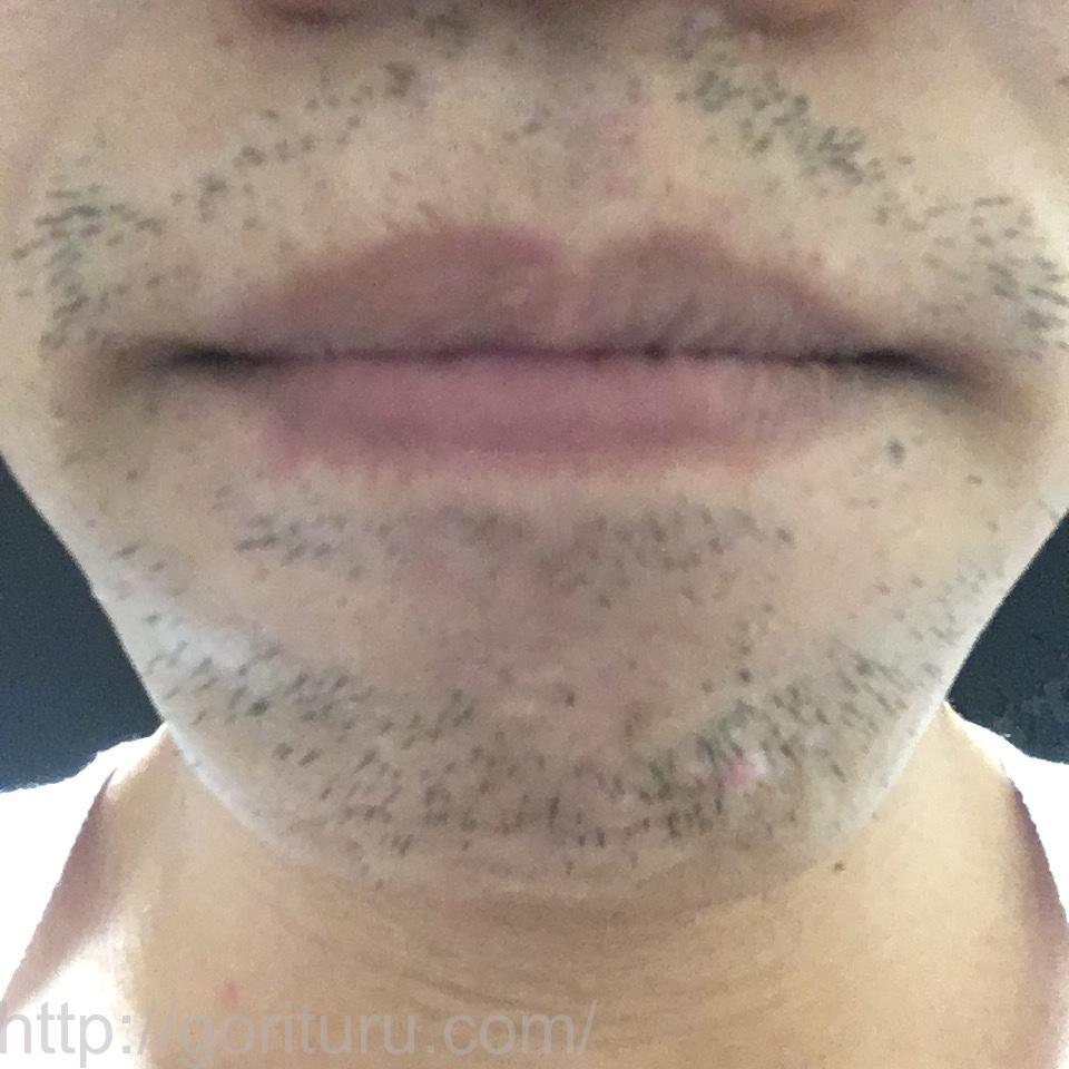 ゴリラクリニックのヤグレーザーで7回目のヒゲ脱毛を終えた後の効果検証結果(アゴ・鼻下)