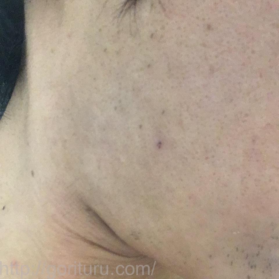 ゴリラクリニックで7回目のヒゲ脱毛を終えた後の効果検証結果(右ほほ・もみあげ)