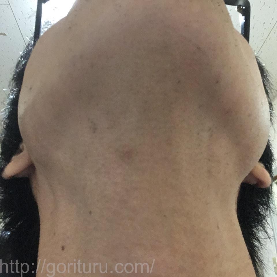 ゴリラクリニックで7回目のヒゲ脱毛を終えた後の効果検証結果(首・アゴ下)