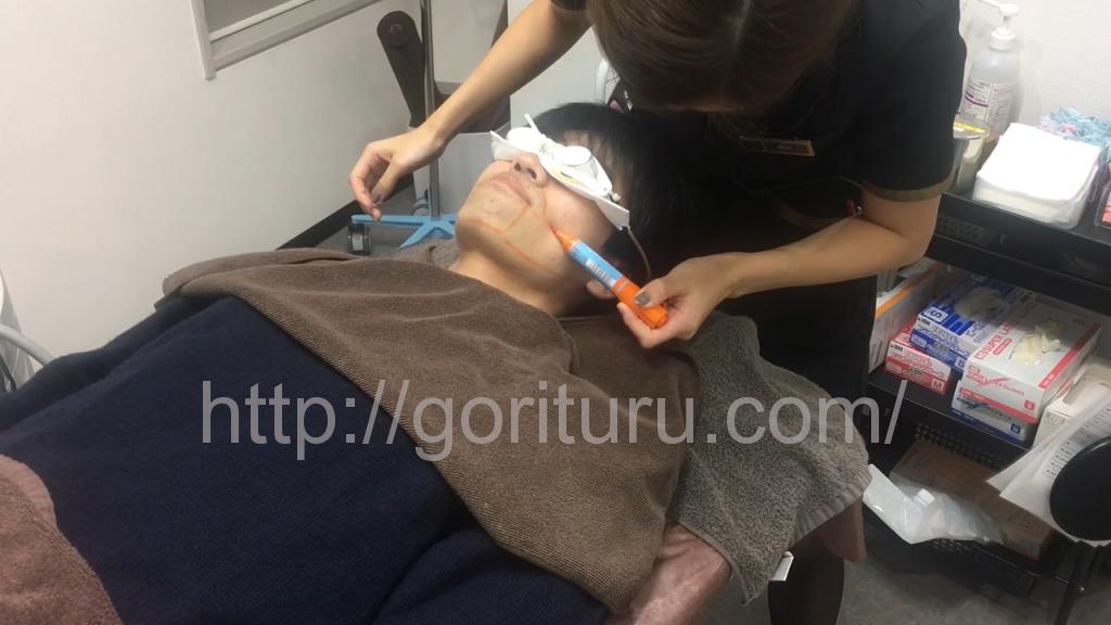 ゴリラクリニック銀座院でヒゲ脱毛8回目の施術(マーキング)