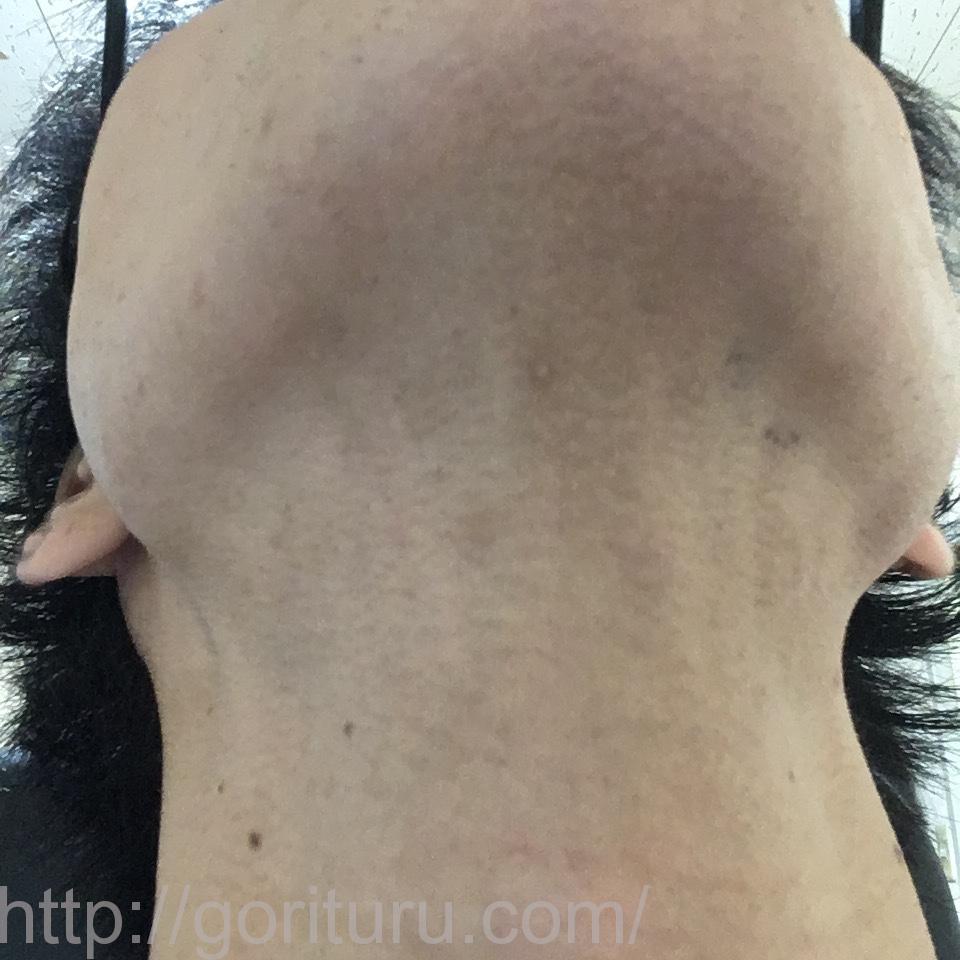 ヒゲ脱毛(レーザー脱毛)の驚異的な効果@8回目20日後(首・アゴ下)