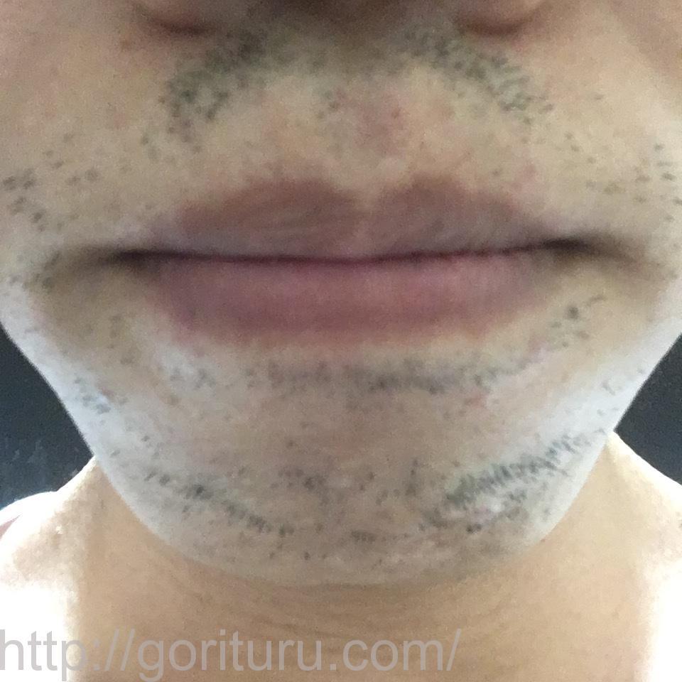 ヒゲ脱毛8回目1ヶ月後@ゴリラクリニックのアフター画像(鼻下・アゴ)