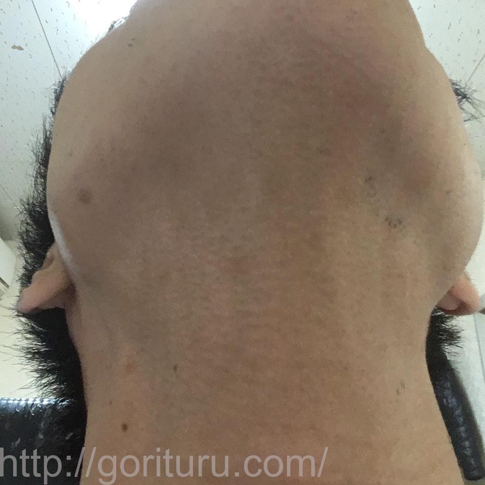 ヒゲ脱毛8回目1ヶ月後@ゴリラクリニックのアフター画像(首・アゴ下)