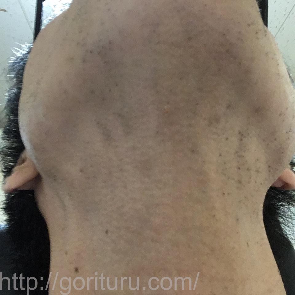 ゴリラクリニックで8回目のヒゲ脱毛を終えた後の効果(首・アゴ下@7日目)